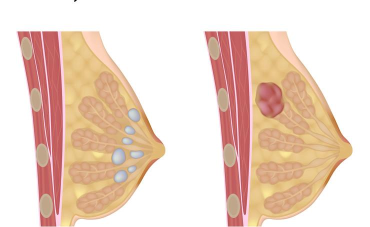 Кожная опухоль (фиброма)