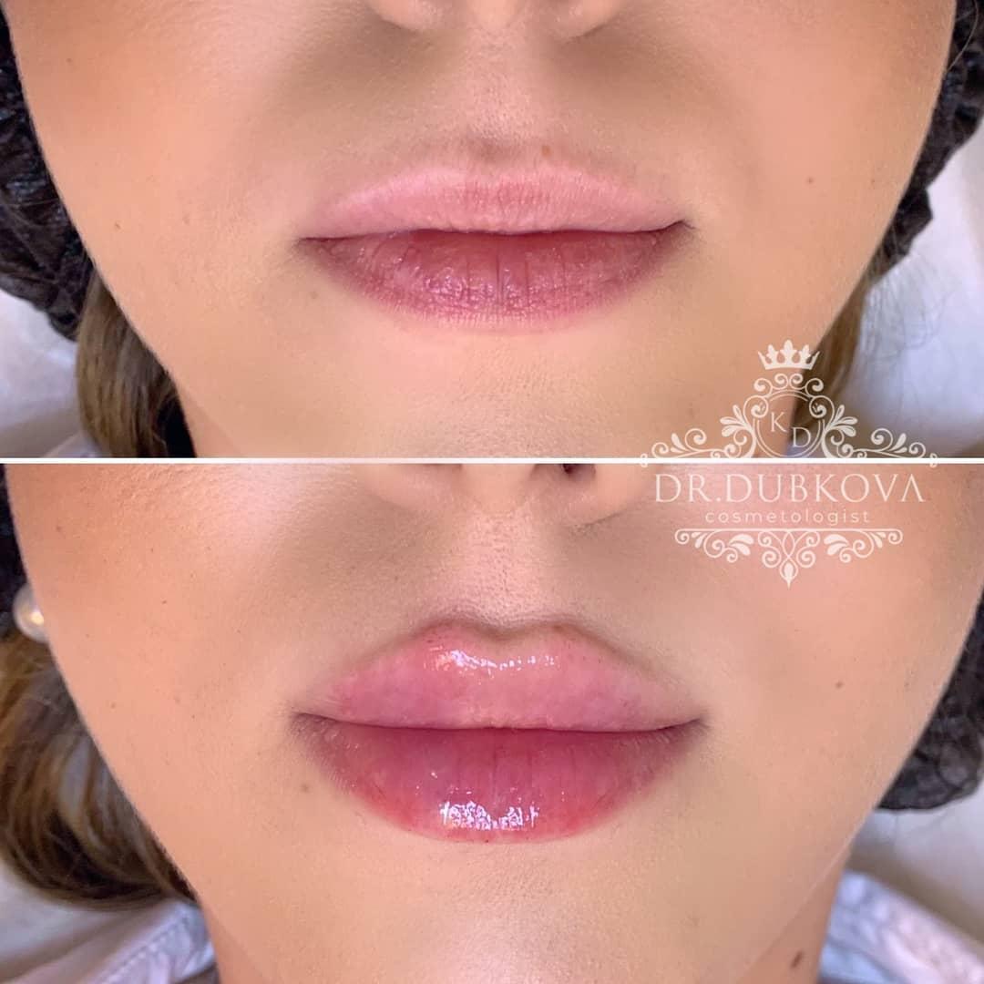 Увеличение губ гиалуроновой кислотой: отзывы, фото до и после, цена на контурную пластику, увлажнение, сколько держится гиалуронка, если накачать ей губы, уход после, противопоказания