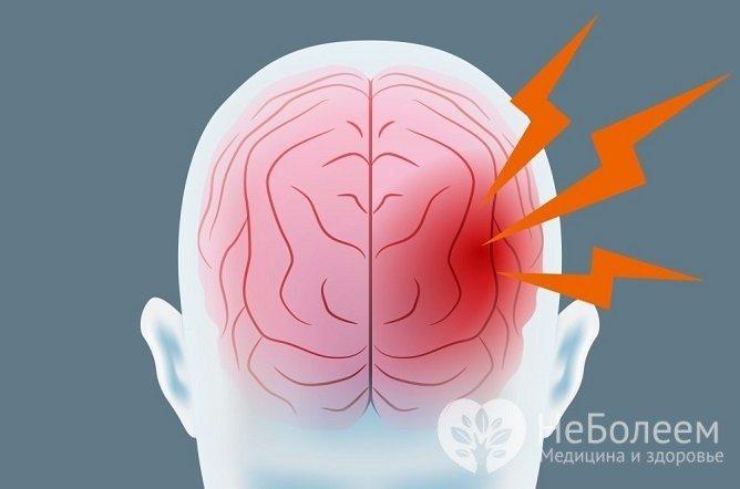 Чем отличается кровоизлияние мозга от инсульта - больница103.ру