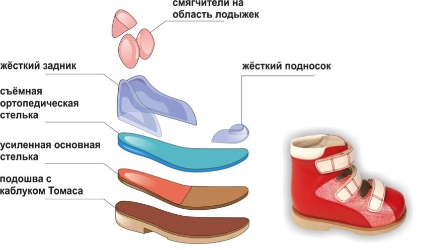 Функциональные особенности силиконовых стелек, разновидности изделий