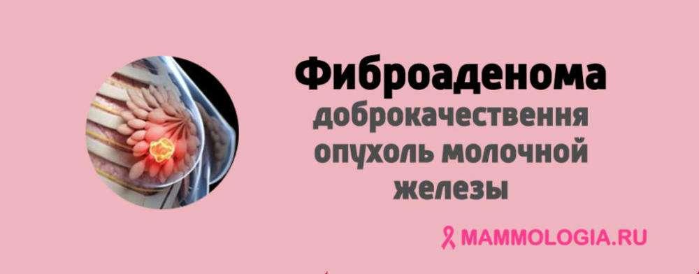 Фиброма матки: что это такое и опасна ли она