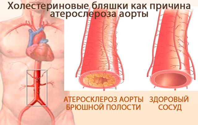 Атеросклероз аорты сердца — что это такое?