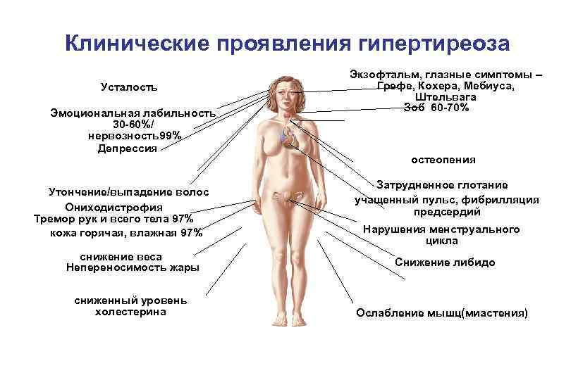 Гипертиреоз: симптомы, лечение, причины развития и профилактика