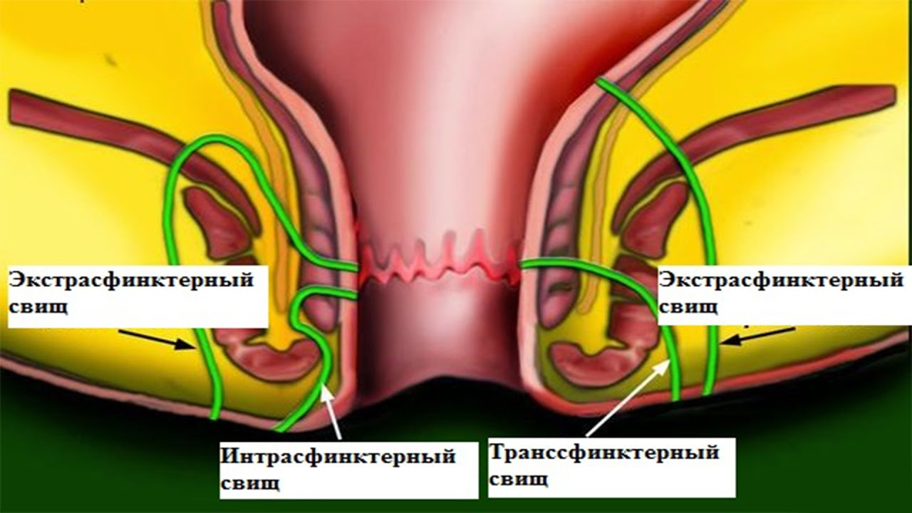 Лечение свища прямой кишки народными средствами без операции