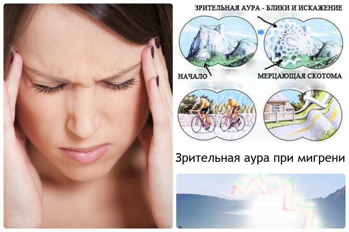 Мигрень с аурой: механизмы развития и лечение