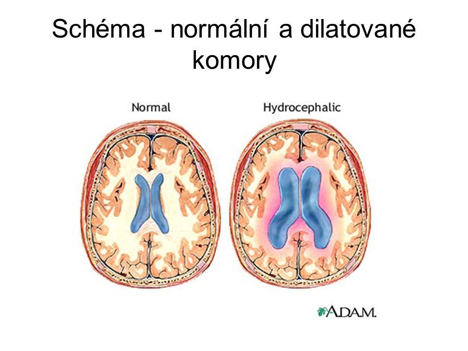 Гидроцефалия головного мозга у взрослых - причины, симптомы, лечение