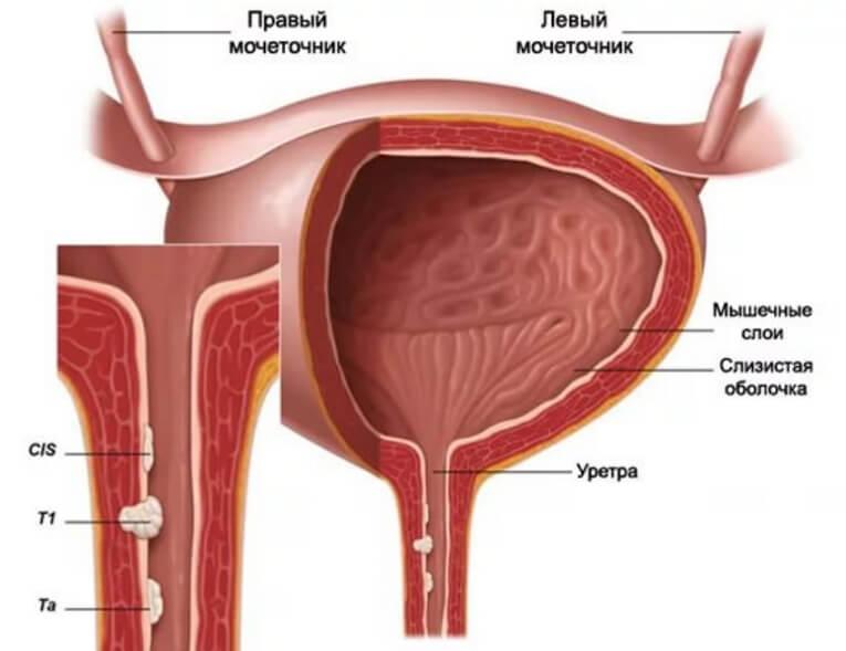 Все симптомы и методы лечения уретрита у женщин