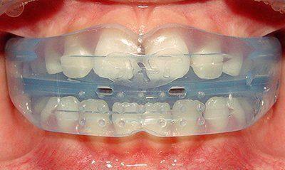 Что такое трейнер: как устанавливаются ортодонтические трейнеры.
