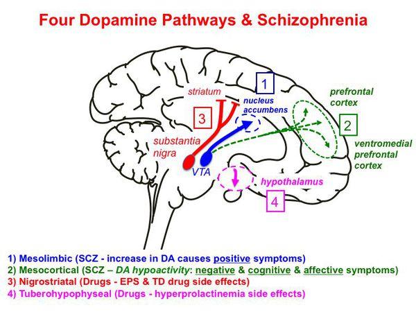 Шизословарик: что такое шизофрения, бываетли она вялотекущей ипочему «шизоид»— это недиагноз