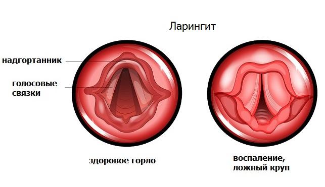 Ларингит: причины, симптомы, диагностика и лечение в москве