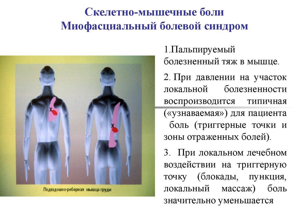 Миофасциальный синдром, триггерные точки - симптомы, лечение позвоночника в москве