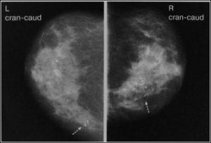 Маммография: виды исследования и принципиальные различия в проведении