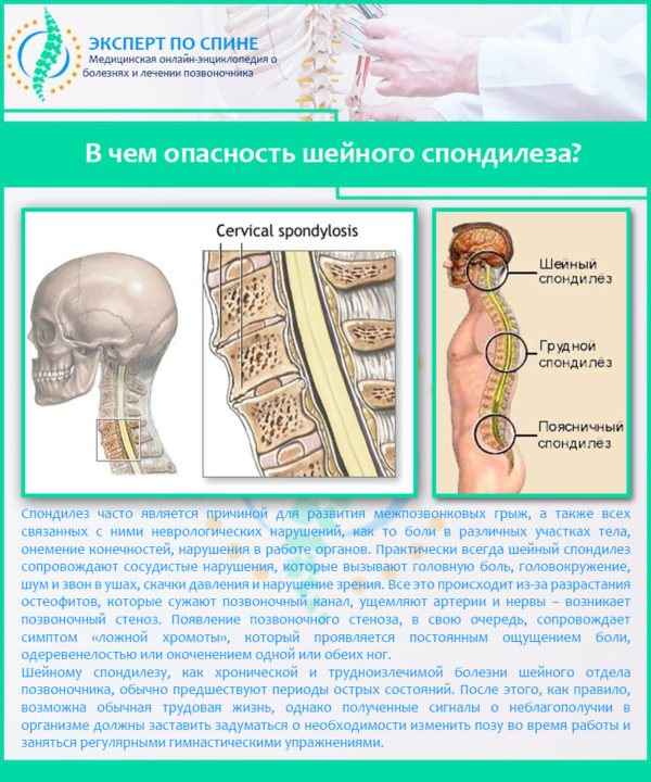 Спондилез шейного отдела позвоночника: симптомы и лечение!