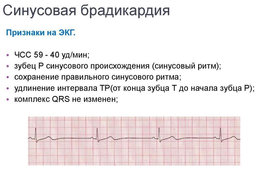 Чем опасна брадикардия сердца для жизни: последствия отсутствия лечения и помощь при приступе в домашних условиях до приезда скорой помощи