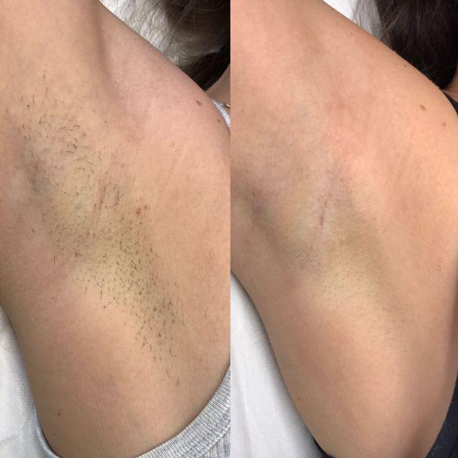 Эпиляция лазером плюсы и минусы, преимущества и недостатки - волосовед