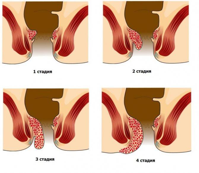 Что такое свищ, как лечить? свищ зуба, прямой кишки, лигатурный, трахеопищеводный