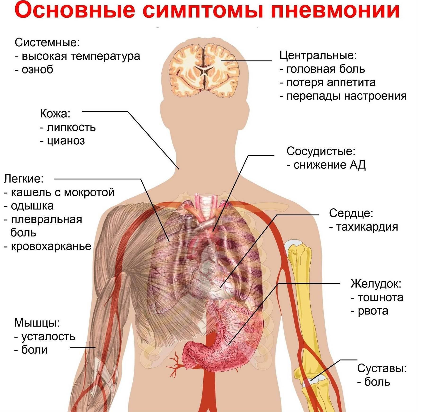 «пневмония при covid-19 похожа напневмонии при свином гриппе». интервью спульмонологом