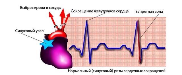 Нерегулярный синусовый ритм - здоров.сердцем