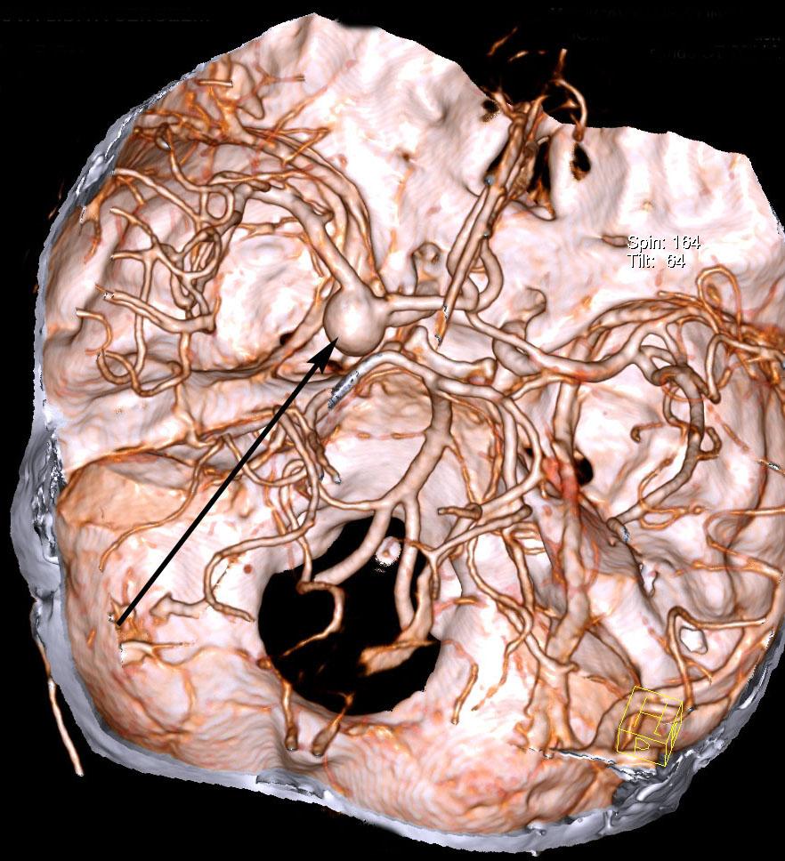 Симптомы и последствия разрыва аневризмы головного мозга