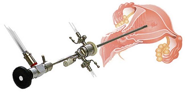Что выявляет гистероскопия: патологические процессы, отраженные в результатах гистероскопии   университетская клиника
