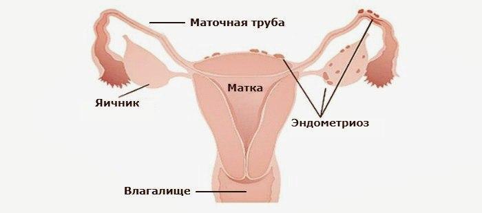 Эндометриоз: лечение, симптомы, признаки, диагностика. что такое эндометриоз и как лечить его