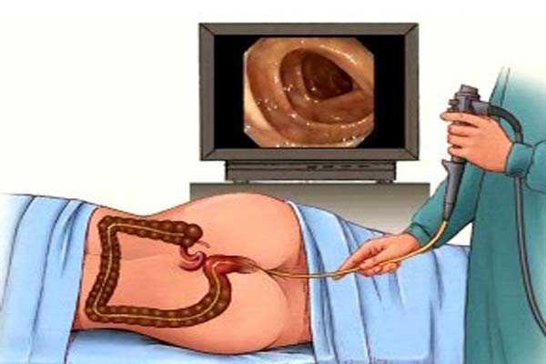 Всё о рентгенологическом исследовании кишечника