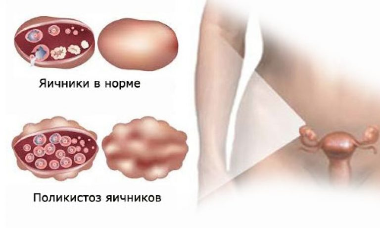 Спкя синдром поликистозных яичников