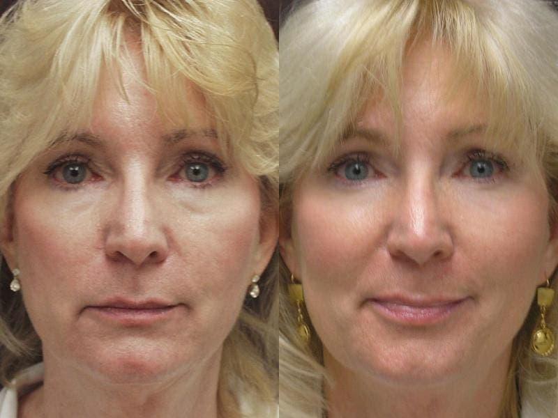 Филлеры для лица – каковы последствия процедуры: фото до и после