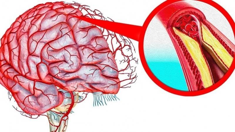 Что такое церебральный атеросклероз. симптомы и лечение церебрального атеросклероза