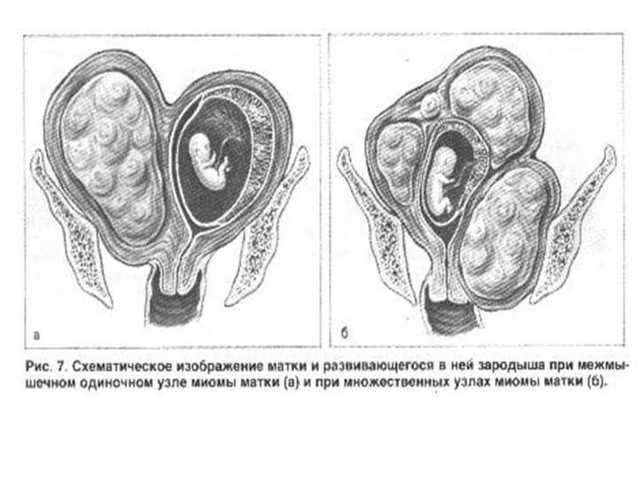 Что такое двурогая матка чем опасно. описание двурогой матки с фото: что это такое, можно ли родить, имея эту патологию? причины и профилактика двурогой матки