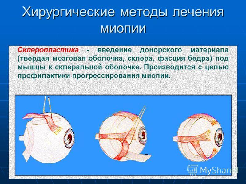 Что такое близорукость (миопия) глаз: лечение и профилактика   theyabloko.ru