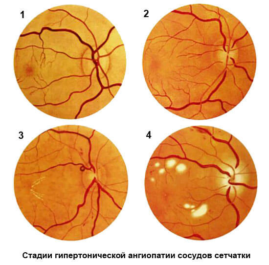 Ангиопатия сетчатки по гипертоническому типу: что это такое, причины - проздоровье