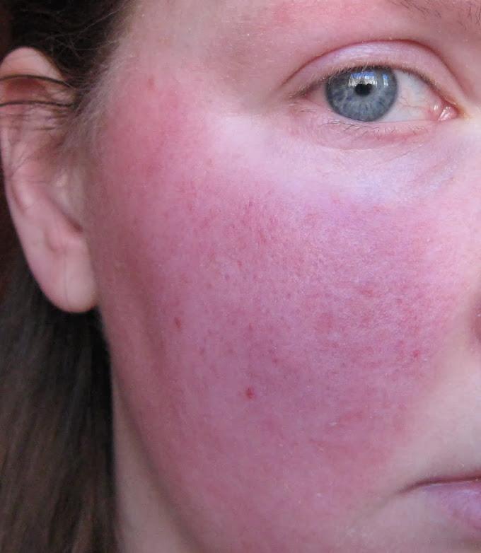 Розацеа | симптомы | диагностика | лечение - docdoc.ru
