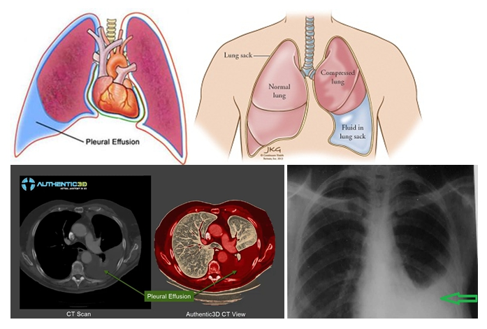 Гидроторакс легких: причины, симптомы и лечение
