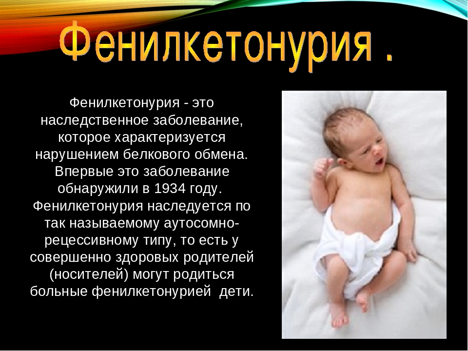 Фенилкетонурия, что это за заболевание, симптомы у новорожденных, этиология, код по мкб 10 у детей