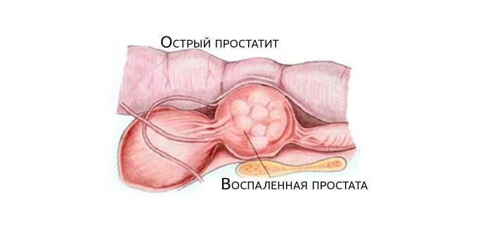 Роль простаты в организме мужчины. заболевания