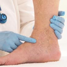 Флеболог - что это за врач и какие венозные болезни ног лечит хирург-флеболог, способы диагностики