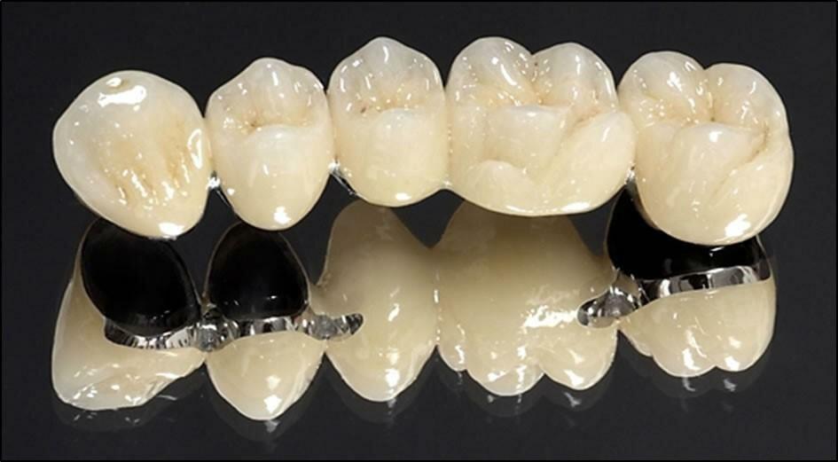 Цельнолитые зубные коронки и виды и преимущества, фото