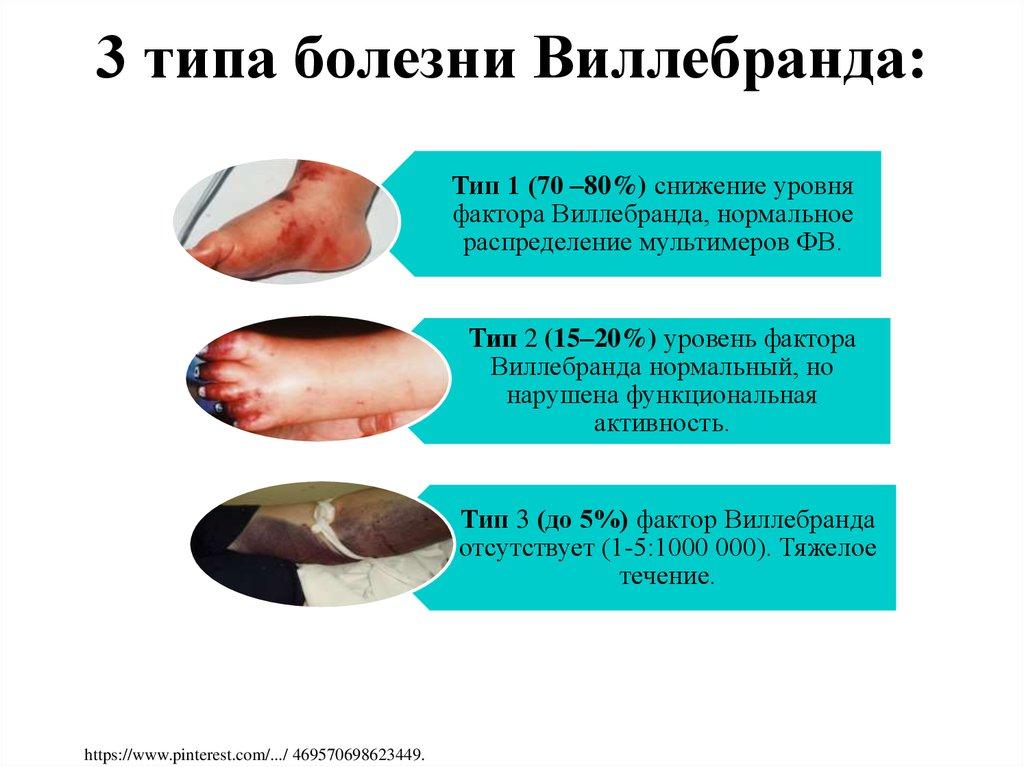 Болезнь виллебранда, фактор фон виллебранда – что это такое? повышенная кровоточивость – клинические рекомендации