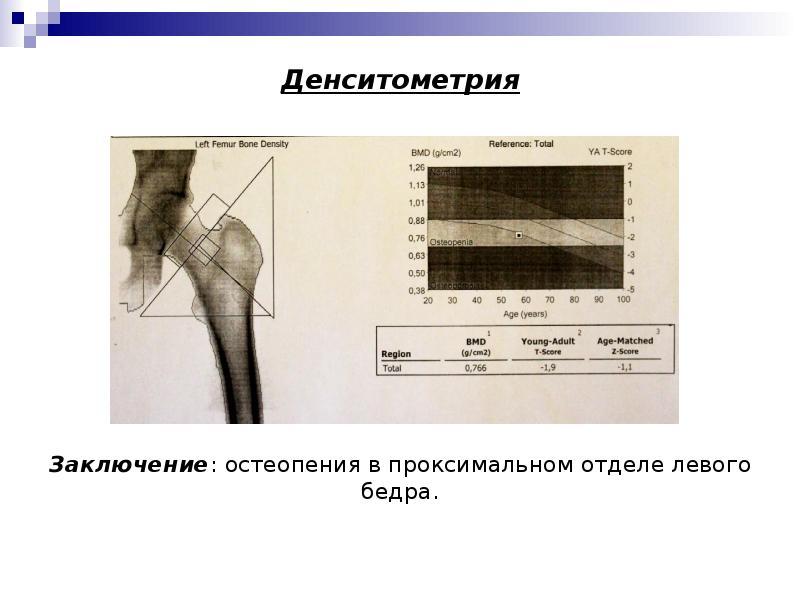 Денситометрия: показания измерения плотности костной ткани