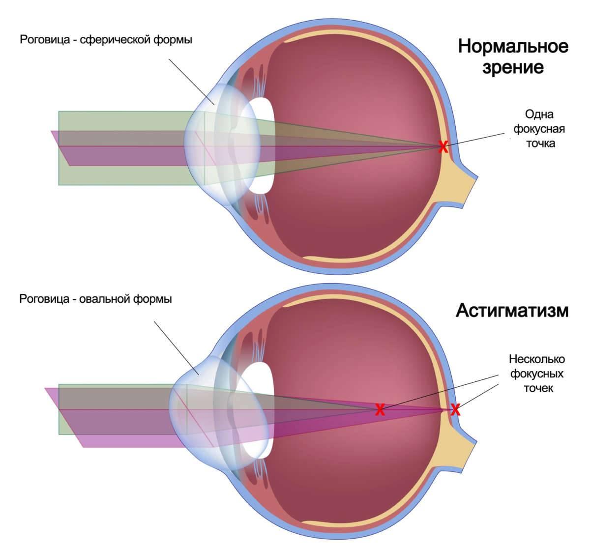 Астигматизм – что это такое простыми словами? астигматизм глаз – лечение