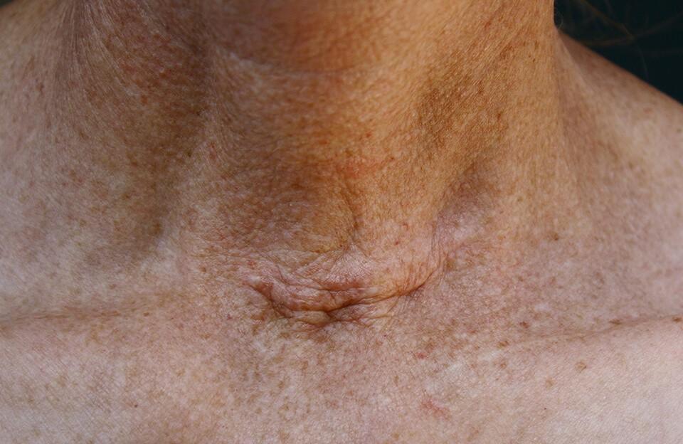 Саркома, что это за болезнь? фото, симптомы и лечение