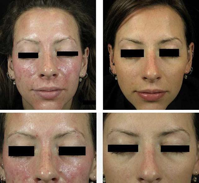 Пилинг тса: что это такое – поверхностный и срединный (25 процентов трихлоруксусной кислоты), и противопоказания к tca, протокол химической процедуры, уход за лицом