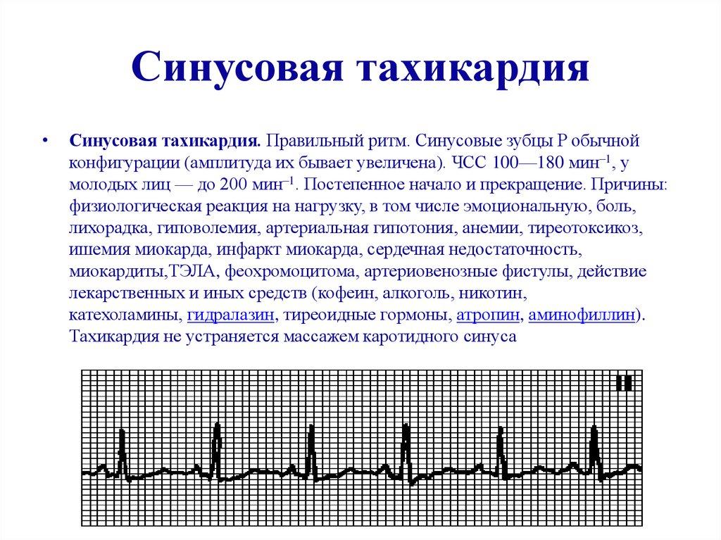 Синусовая тахикардия сердца — что это такое, симптомы и лечение у взрослых, ребенка, при беременности