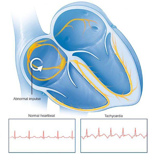 Тахикардия сердца что это такое и как лечить?