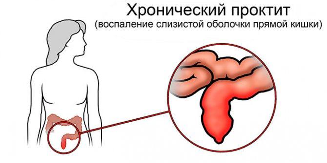 Что такое проктит кишечника симптомы