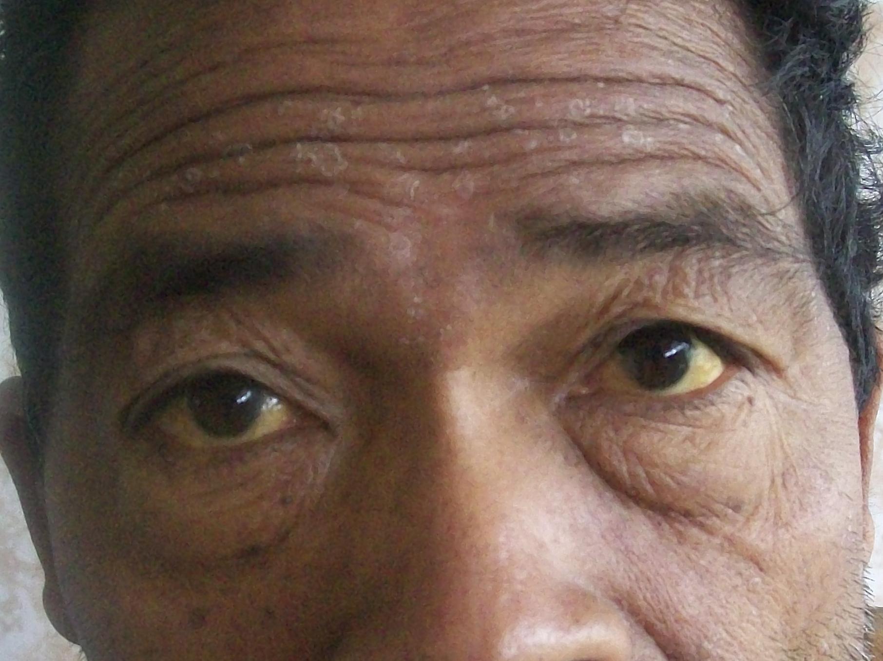 Механическая желтуха: что это такое, причины и лечение
