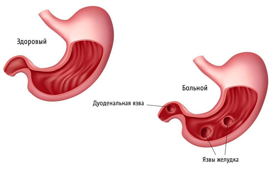 Бульбит: симптомы и лечение, диета