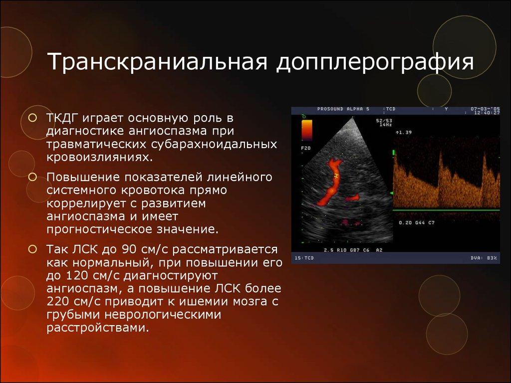 Цветовое дуплексное сканирование брахиоцефальных артерий
