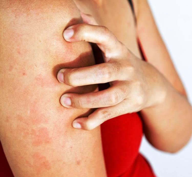 Зуд по всему телу без высыпаний: причины от чего чешется кожа без сыпи и видимых покраснений